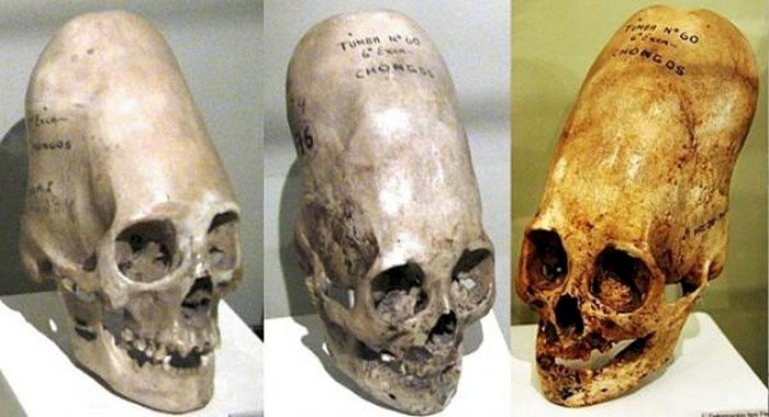Misterul craniilor alungite – Moștenirea genetică a unei rase necunoscute